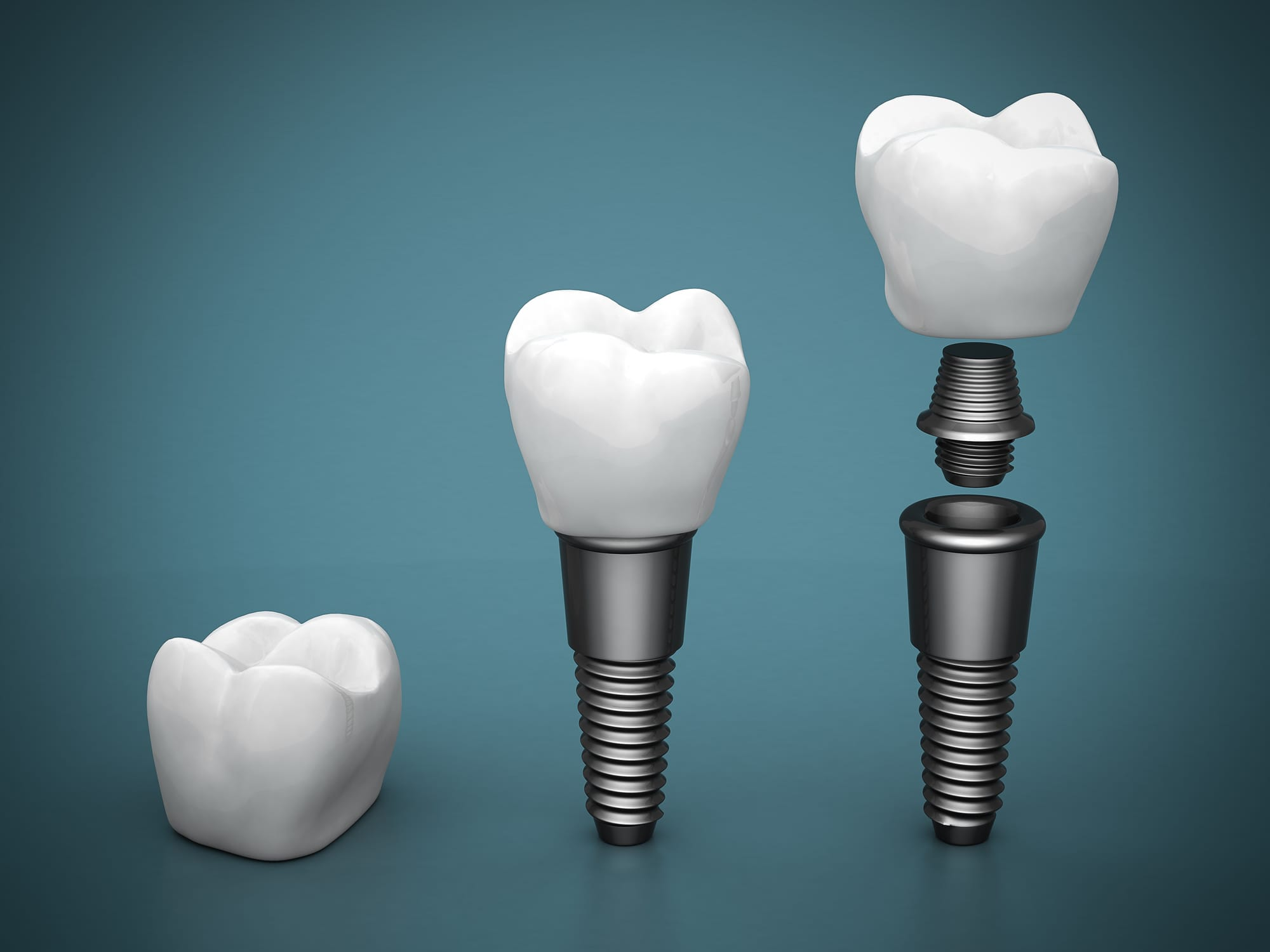 where is the best aventura dental implants?