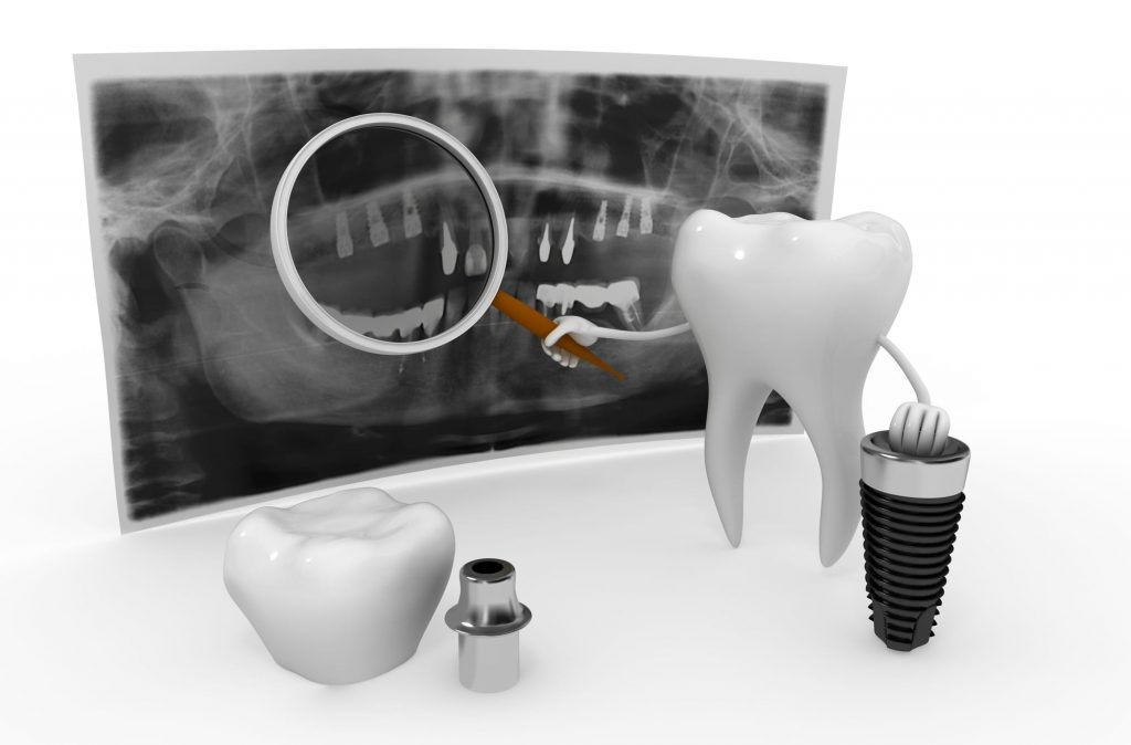 where can i find the best dental implants in miami gardens near me?